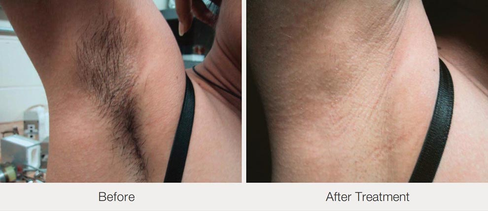 hair removal laser compare